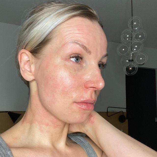 🔆TÄNÄÄN KLO.18!!!🔆 Olen vieraana @allergiaihojaastmaliitto FB-livessä ja aiheena on atopia ja meikkaaminen. Itselläni on ollut atooppinen iho 1-vuotiaasta lähtien vaihdellen välillä katastrofaalisesta keskivaikeaan. Livessä kerron millaisia haasteita atopia on tuonut meikkaamiseen ja tuotteiden valintaan. Meikit ja ylipäätään kauneudenhoito ovat mulle kuitenkin sydäntä lähellä oleva juttu!💖 Eli tervetuloa linjoille klo.18. Kyseessä on suht lyhyt ja napakka paketti☺️. 📸: @vestigevisions  Meikki: tein itse #atopia #atooppineniho #atoopikko #eksema #meikkivinkit